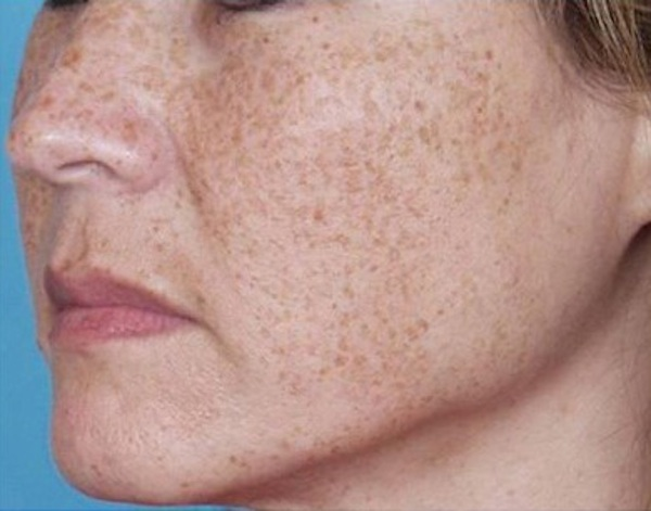 removing facial brown spots